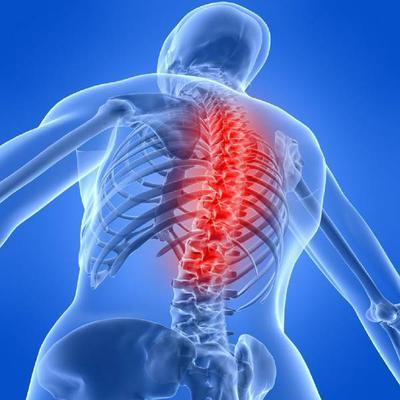Arthritis and Sport